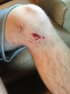 Blake's knee one week after the accident